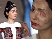 Thời trang - Cô gái bị tạt axit hỏng mặt tự tin trình diễn tại Tuần lễ thời trang New York