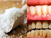 Làm đẹp - 1 nhúm muối và 2 cách làm răng trắng bóng không ê buốt