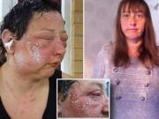Tin tức - Kinh hãi những khuôn mặt phồng rộp, biến dạng vì thuốc nhuộm tóc