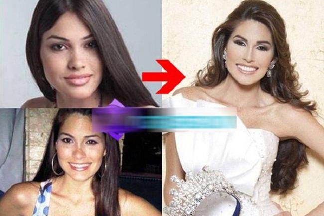 Những bức ảnh trước kia củaMaria Gabriela Isler được công bố cho thấy ngày trước chiếc mũi của Hoa hậu khá gẫy, không được cao thẳng như hiện tại. Đó là lý do vì sao cô bị nghi ngờ đã phẫu thuật thẩm mỹ mũi.