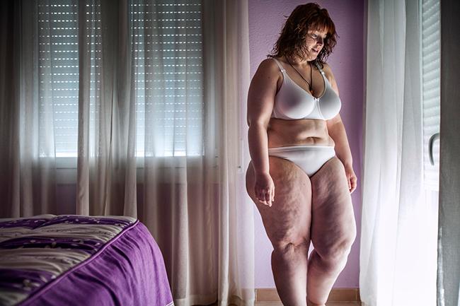 Sandra, 31 tuổi, người Tây Ban Nha,bị bệnh béo phìvới vòng hai quá khổvà cặp đùi núng nính mỡ.