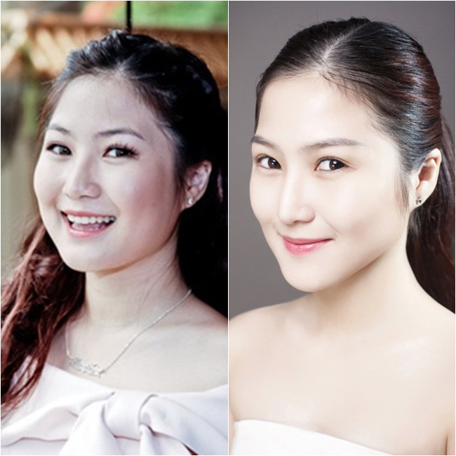 Chỉ sau một thời gian ngắn, hầu như chẳng ai có thể nhận ra Hương Tràm. Sắc đẹp của nữ ca sĩ hiện tại chẳng kém một diễn viên nổi tiếng Hàn Quốc nào.