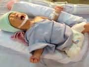 Nuôi con - 7 ngày giành sự sống của thai nhi văng khỏi bụng mẹ qua ảnh