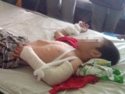 Pháp luật - Bé 6 tuổi bị dượng đánh: Phát hiện chấn thương sọ não