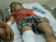 Pháp luật - Bé trai 6 tuổi bị cha dượng đánh đang xuất huyết não