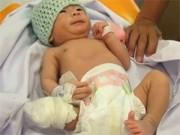 Y tế - Bé sơ sinh văng khỏi bụng mẹ sắp xuất viện