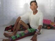 Y tế - Heo rừng cắn nát chân hai nạn nhân