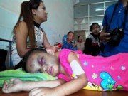 Tin tức - Những vụ bạo hành trẻ em gây chấn động năm 2014