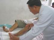 Tin tức - Cuối năm, bệnh nhân nhập viện vì bị rắn lục cắn tăng