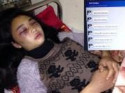 Tin tức - Nữ sinh bị đánh hội đồng 2 tiếng trong khách sạn