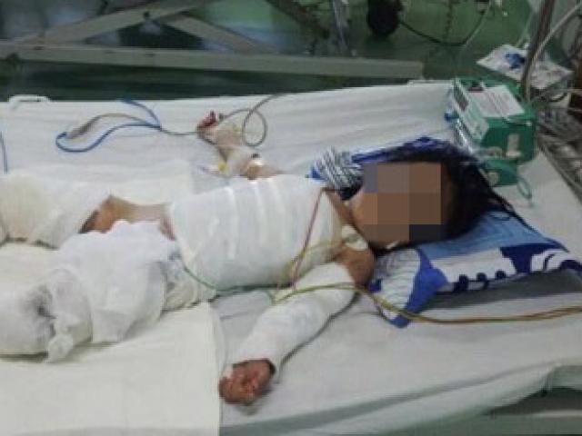 Bé gái 2 tuổi nguy kịch vì bỏng nước sôi