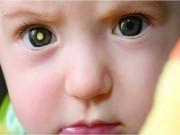 Dấu hiệu cảnh báo bệnh tật nguy hiểm qua đôi mắt cần khám ngay