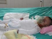 Tin tức - Mẹ sơ sẩy, con 14 tháng tuổi ngã vào nồi canh vừa sôi gây bỏng nặng