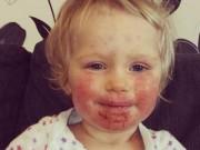 Tin tức - 'Nụ hôn thần chết' khiến bé gái 2 tuổi bị lở loét, đau đớn suốt 8 tháng trời