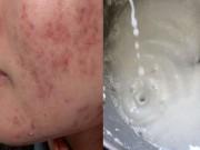 Trộn nước dừa và mật ong rồi thoa lên mặt, sẹo và vết thâm sẽ dần dần mất hết