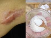 Tất tần tật các công thức trị sẹo lồi, lâu năm đến mấy cũng phải khỏi đến 90%