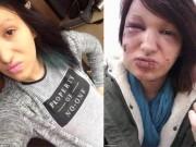 Cô gái xinh đẹp bị biến dạng vì tình cũ ghen tuông cắn 21 phát vào mặt