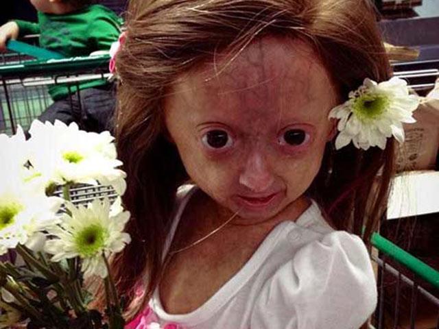 Bé gái sơ sinh kỳ lạ từng được đoán thọ 13 năm, nay đã lớn xinh đẹp