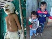 Tin tức - Cậu bé 4 tuổi bị bỏng xăng nguy kịch khi ở nhà một mình giờ ra sao?