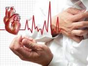 Tại sao bệnh nhân tử vong do tim mạch gia tăng trong kỳ nghỉ lễ?