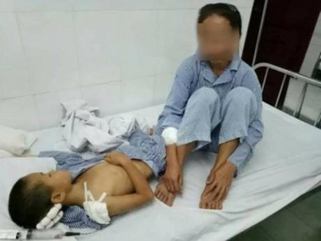 Chồng say rượu, dùng dao truy sát vợ con trong ngày 20/10