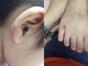 Phẫn nộ trước cảnh cô giáo mầm non hành hạ con riêng của chồng ở Hà Nội