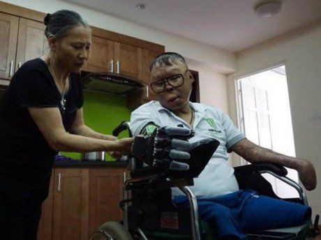Cuộc sống mới của chiến sĩ sống sót trong vụ trực thăng rơi ở HN khi có bàn tay giả