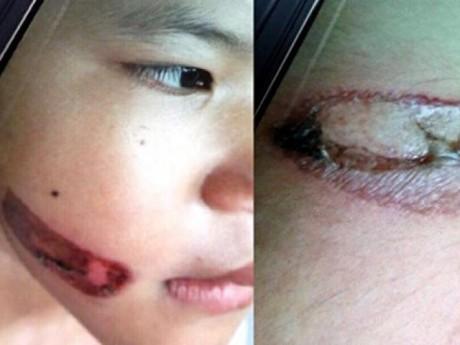 Vụ cháu bé 7 tuổi ở Kiên Giang bị dí sắt nung vào người: Đã khởi tố vụ án