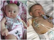 Làm mẹ - Không được tiêm vắc xin phòng bệnh viêm màng não, bé 1 tuổi phải cắt bỏ tay chân