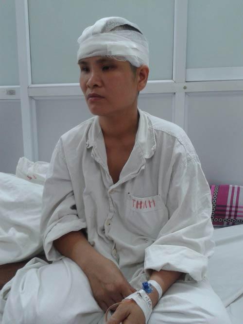Người phụ nữ lột da đầu vì tóc cuốn vào máy-1