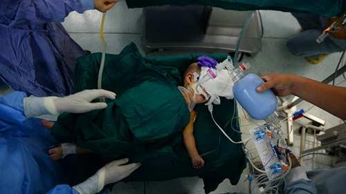 Một bé tử vong trong ca mổ tách song sinh-1
