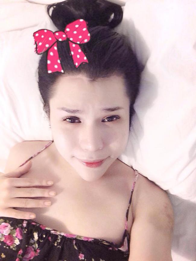 ' Bản sao Hà Hồ '  đăng ảnh chuyển giới đau đớn