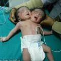 Làm mẹ - Sinh con 2 đầu vì không có tiền siêu âm