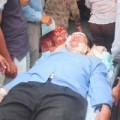 Tin tức - Vụ 4 cán bộ, giáo viên bị tạt axít: Nguy cơ bị mù rất cao