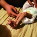 Làm mẹ - Xót xa bé 1 tháng không ăn vì hẹp hậu môn