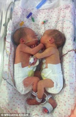 Cặp song thai chung bọc ối sống sót kỳ diệu-5