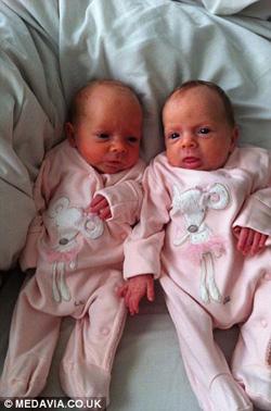 Cặp song thai chung bọc ối sống sót kỳ diệu-8