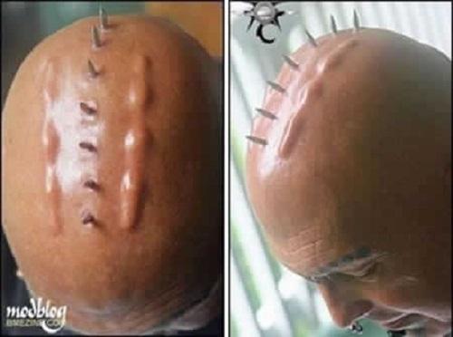 Cấy ghép dưới da: Mốt làm đẹp kỳ dị mới nhất thế giới-11