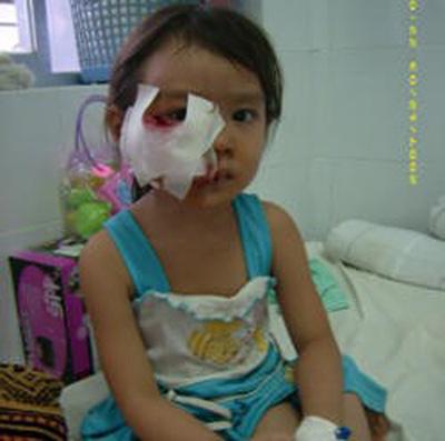 Đề phòng tai nạn thương tích cho trẻ ngày Tết-1