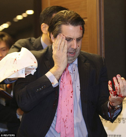 Đại sứ Mỹ tại Hàn Quốc bị tấn công bằng dao lam-2