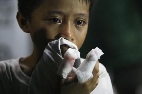 philippines: phao no dem giao thua, gan 400 nguoi thuong vong - 2