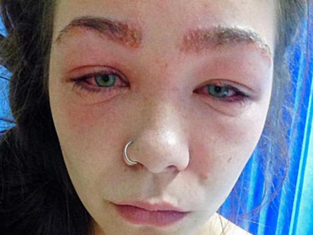 Cô gái suýt mù vì thuốc nhuộm, cảnh báo nguy hiểm cho chị em hay làm đẹp