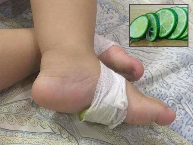 Mẹ Hà Nội mách mẹo dùng chanh cắt lát hạ sốt cho trẻ tức thì tại nhà
