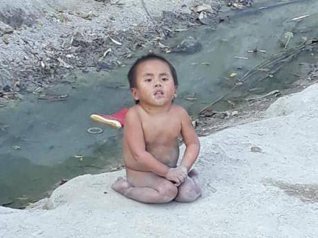 Tin tức 24h: Điều kỳ diệu sau clip bé 6 tuổi nặng 10kg, không mặc quần áo ngồi lề đường