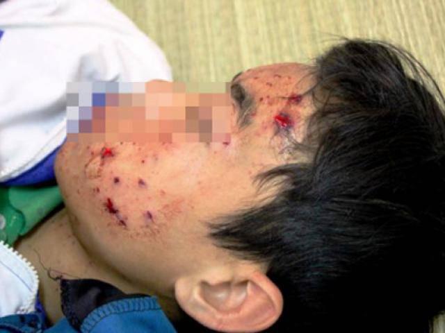 Điện thoại bất ngờ phát nổ khi đang sạc, nam sinh lớp 8 bị mảnh vỡ găm vào cơ thể