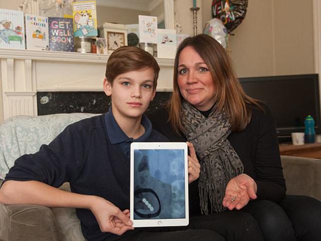 Cậu bé 12 tuổi thủng dạ dày vì món đồ chơi được triệu trẻ em yêu thích