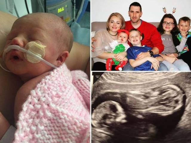 Mang song thai, mẹ đau đớn khi một bé qua đời do biến chứng nguy hiểm