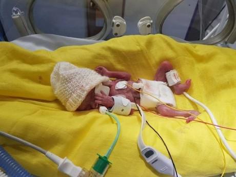 """Nhật kí xúc động về """"cuộc chiến"""" dũng cảm của bé trai sinh non 3 tháng, nặng 0,5kg"""