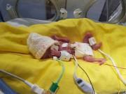 """Nhật kí xúc động về  """" cuộc chiến """"  dũng cảm của bé trai sinh non 3 tháng, nặng 0,5kg"""