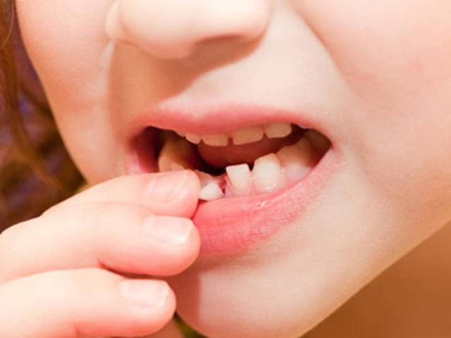 Những lưu ý khi trẻ thay răng sữa để bé sở hữu hàm răng đều và đẹp khi lớn